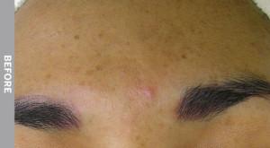 Hyperpigmentacija
